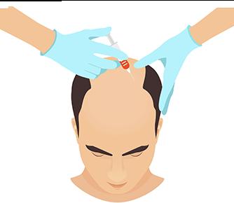 当院おすすめ治療「育毛メソセラピー」